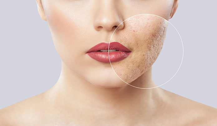 Blizny po trądziku widoczne na twarzy młodej kobiety. Meta tytuł: Usuwanie blizn potrądzikowych – jak wygląda?